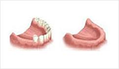 缺失多口牙、全口牙