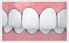 龅牙/覆颌