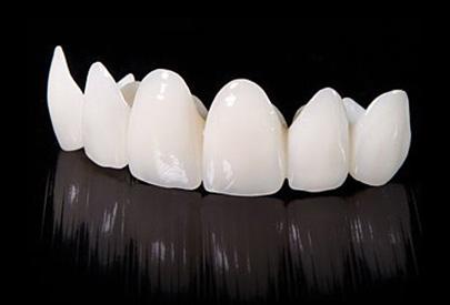 美国Lava全瓷牙