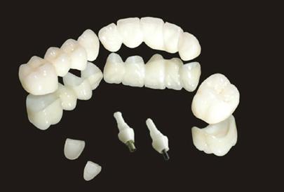 3D数字全锆牙