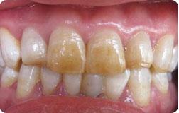 ★ 轻度氟斑牙