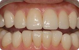 ★ 遗传性黄牙