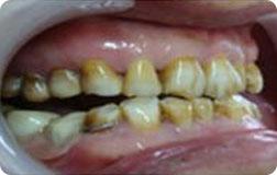 ★ 增龄性黄牙