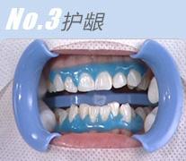 No3.护龈