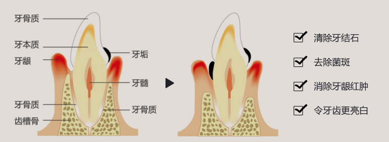 超声波洗牙优势
