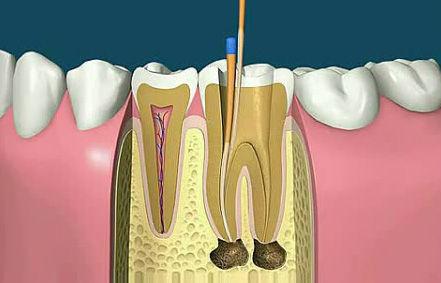 根管治疗牙周病