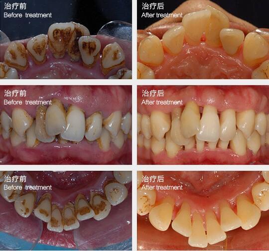 牙周病治疗前后对比图