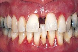 牙齿移位有缝