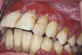 孕妇牙肉红肿