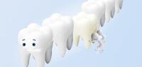 3D数字隐形正畸-牙科诊所