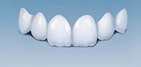 博朗种植全瓷牙-牙科诊所