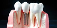 美国种植牙技术